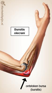arm bursitis olecrani anatomie