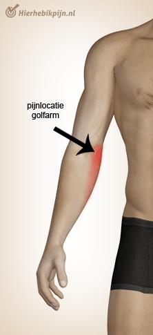 Foto Golfelleboog / epicondylitis medialis humeri / mediale epicondylalgie