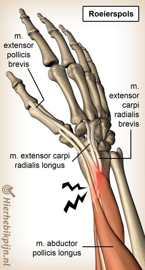 arm roeierspols anatomie extensor carpi radialis brevis longus abductor pollicis