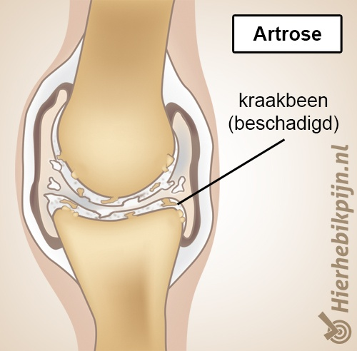 artrose anatomie versleten