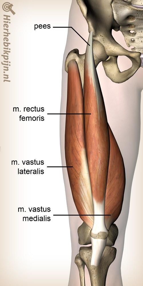 Foto Rectus femoris tendinitis / ontsteking van de pees van de rectus femoris spier