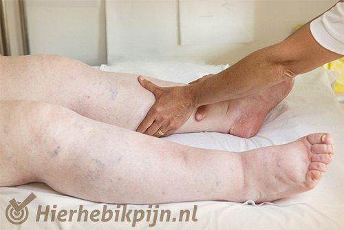 benen lymfoedeem lymfe oedeem been