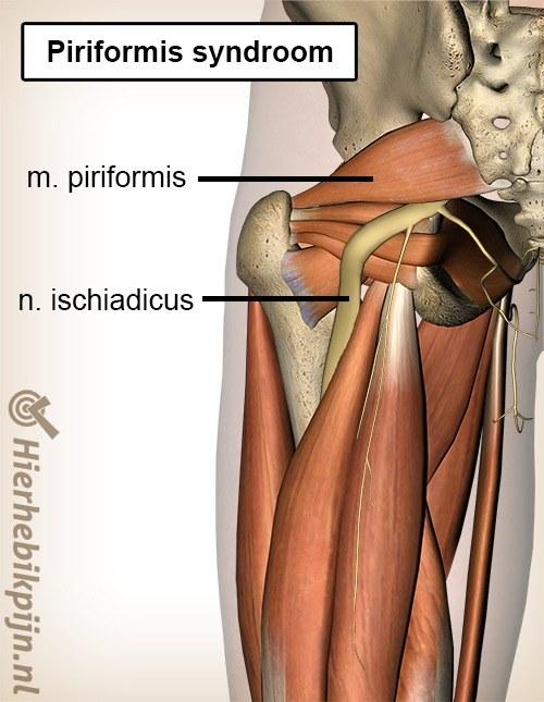 Piriformis Syndroom Oorzaak Symptomen Behandeling