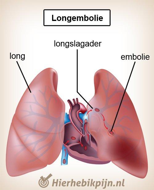 borst longen longembolie hart longslagader