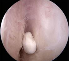 corpus liberum artroscopie