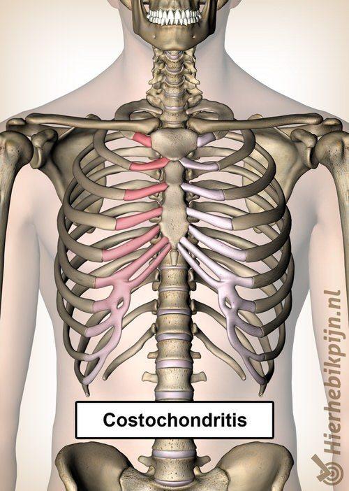costochondritis ribben pijn borst borstbeen