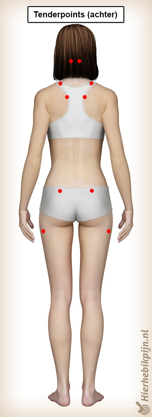 fibromyalgie tenderpoints achter