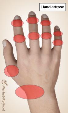 Foto Slijtage van de hand- en vinger gewrichten