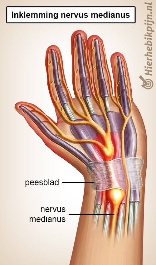 hand carpaal tunnel syndroom cts nervus medianus inklemming