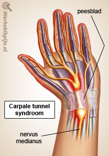 hand carpale tunnel syndroom