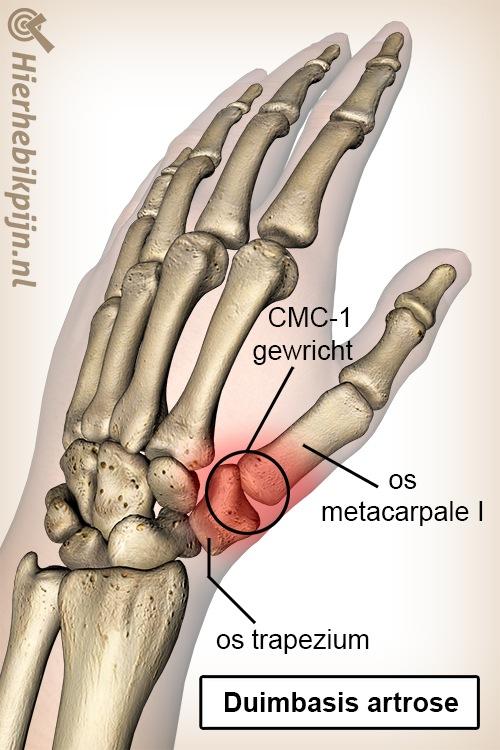 hand duim duimbasis artrose os trapezium middenhandsbeentje metacarpale I CMC 1 gewricht