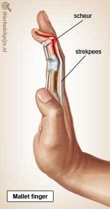 hand mallet finger