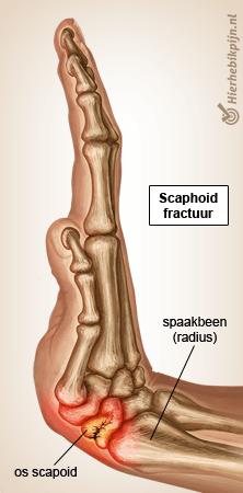 hand scaphoid fractuur