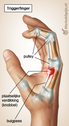hand triggerfinger