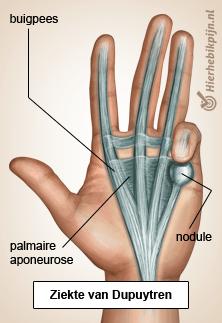 Foto Contractuur van Dupuytren / Morbus Dupuytren / palmaire fibromatose / koetsiershand