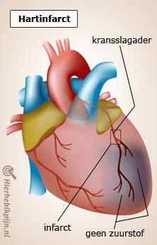 hart hartinfarct kransslagader anatomie