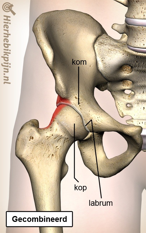 heup femoroacetabular impingement fai mixed gecombineerd