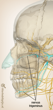 hoofd cervicogene hoofdpijn cgh nervus trigeminus