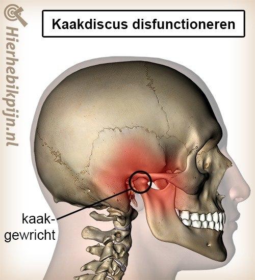 hoofd kaak kaakdiscus disfunctioneren kaakgewricht