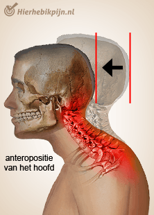 Foto Houdingsgerelateerde nekpijn / tired neck syndrome