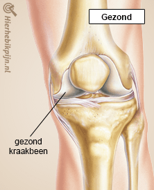 knie artrose gezond kraakbeen