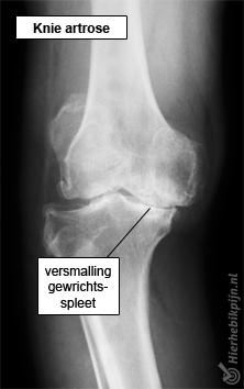 Foto Gonartrose / slijtage van het kniegewricht