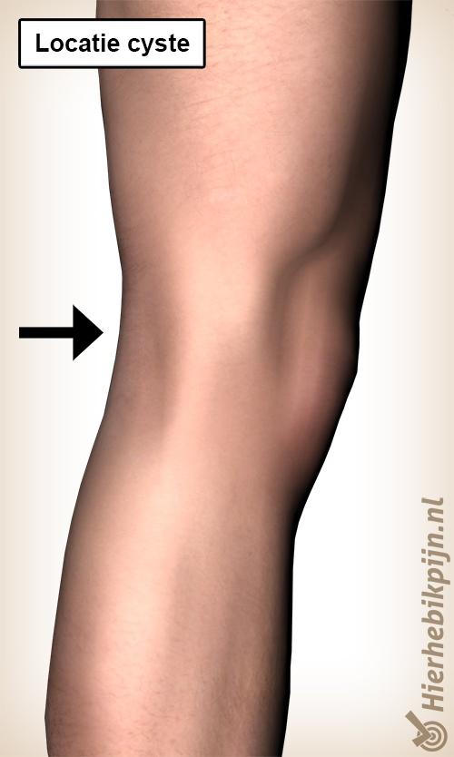 Foto Zwelling in de knieholte / popliteale cyste