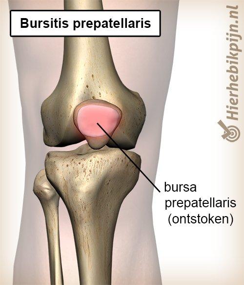 knie bursitis prepatellaris bursa ontstoken slijmbeurs knieschijf