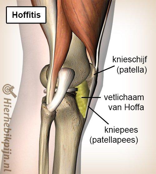 Foto Irritatie van het vetlichaam van Hoffa
