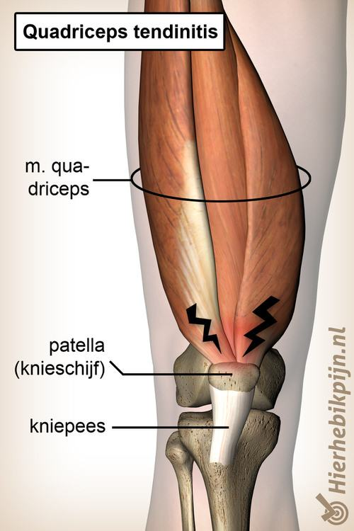 knie quadriceps tendinitis anatomie