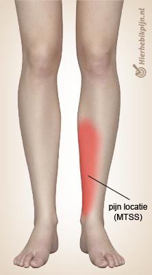 Foto Shin splints / springschenen / scheenbeenirritatie