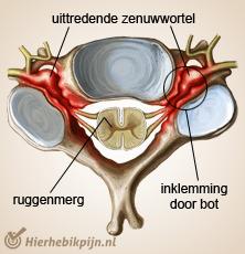 nek cervicale radiculopathie stenose harde nekhernia
