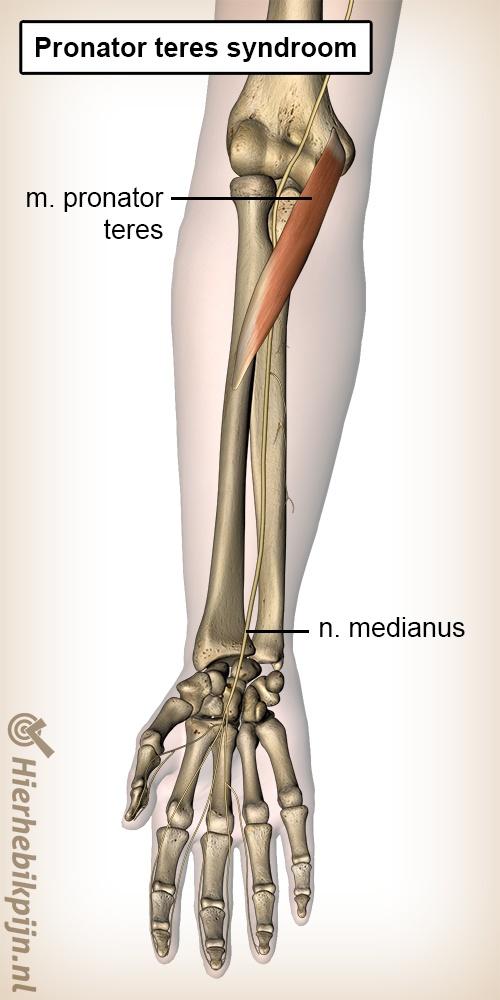 onderarm pronator teres syndroom spier nervus medianus zenuw