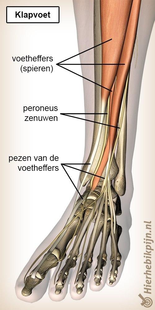onderbeen klaptvoet peroneus zenuwen voetheffers spieren pezen