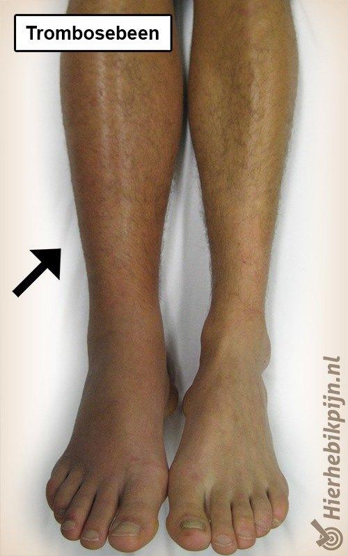 onderbeen trombosebeen trombose zwelling
