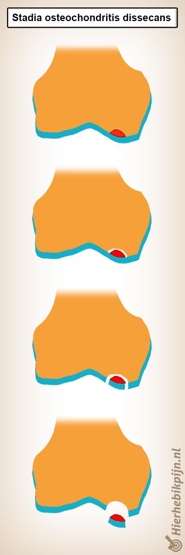 osteochondritis dissecans fases kraakbeen