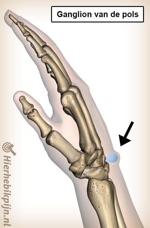 pols ganglion zwelling bult anatomie slijmcyste mucoid cyste