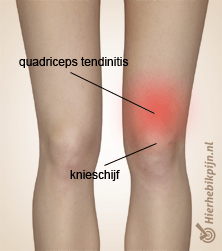 Foto Quadriceps tendinopathie