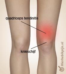 quadriceps tendinitis