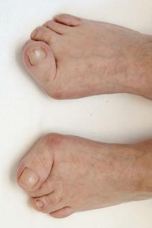 reumatoide artritis voeten