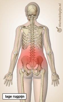 rug lage rugpijn wervelkolom skelet