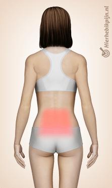 rug lumbaal pijnlocatie