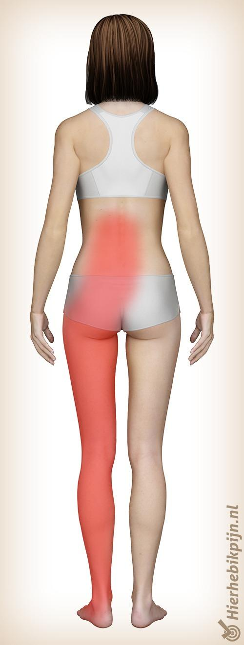 rug lumbosacraal radiculair syndroom hernia pijn locatie
