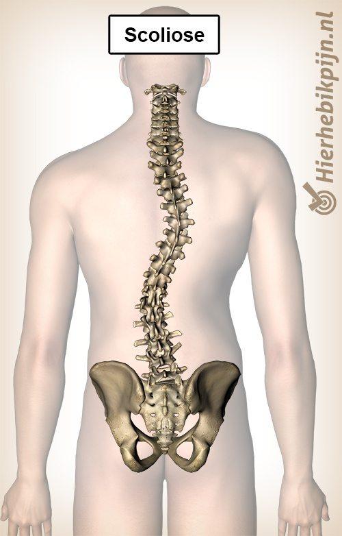fysiotherapie scoliose