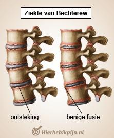 rug specifieke lage rugpijn ziekte van bechterew spondylitis ankylopoetica
