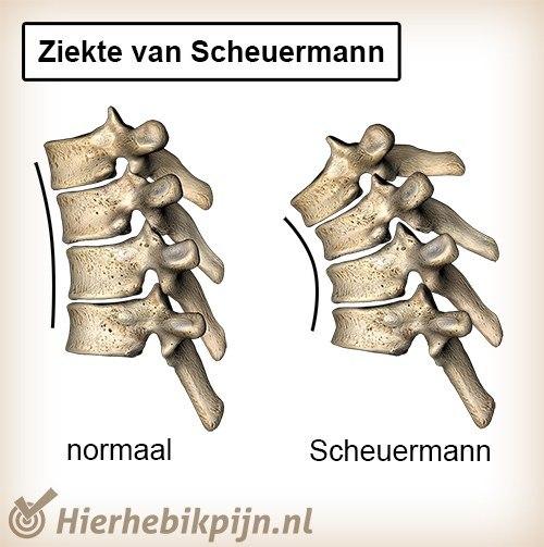rug ziekte van scheuermann wervelkolom normaal bolling kyfose anatomie wigvormig