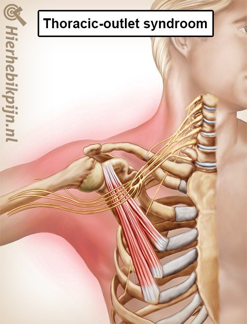 Thoracic Outlet Syndroom Oorzaak Symptomen Behandeling