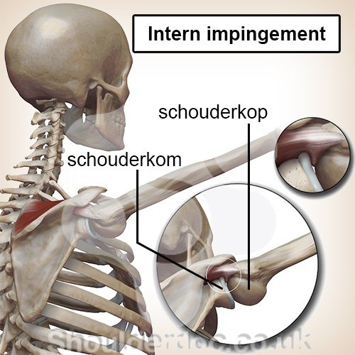 schouder intern impingement schouderkop schouderkom inklemming