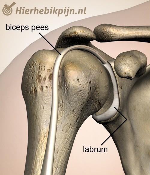 schouder labrum biceps pees