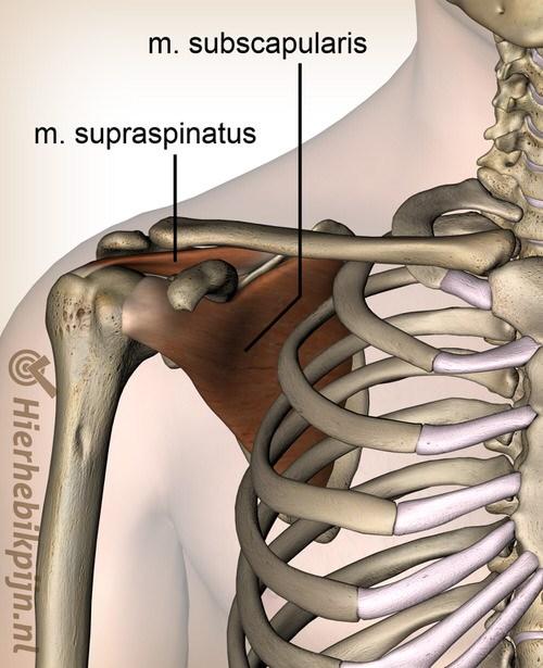 Foto Subscapularis tendinitis / subscapularis tendinose / subscapularis ruptuur